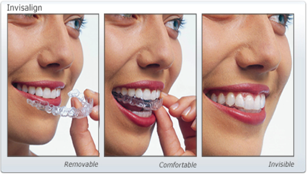 Invisalign – Why it should be your First Choice