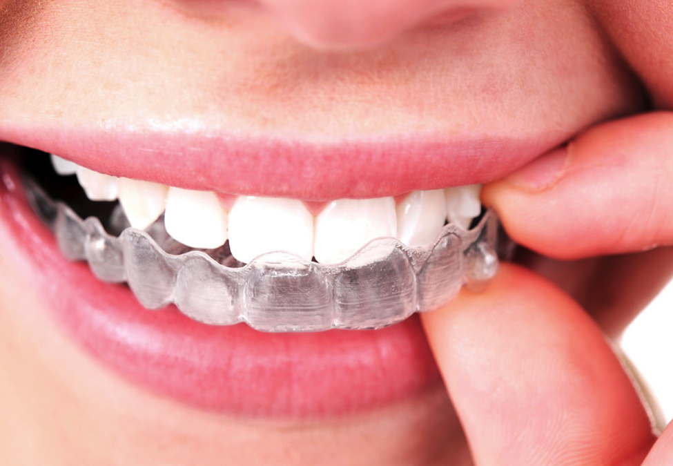 Invisalign: How Is It Effective?